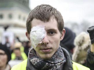 Francuska policja oskarżona o brutalność