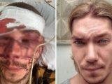 Ukraina: seria napadów nacjonalistów na zwolenników partii popularnego blogera [ VIDEO]